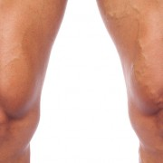 Varicose veins in an athlete's legs after exercising