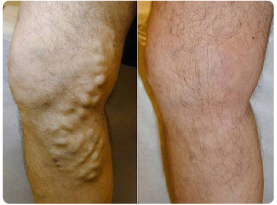 Before and after images of laser vein treatments on a man's legs