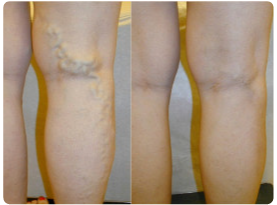 Before and after pictures of laser vein ablation for varicose veins