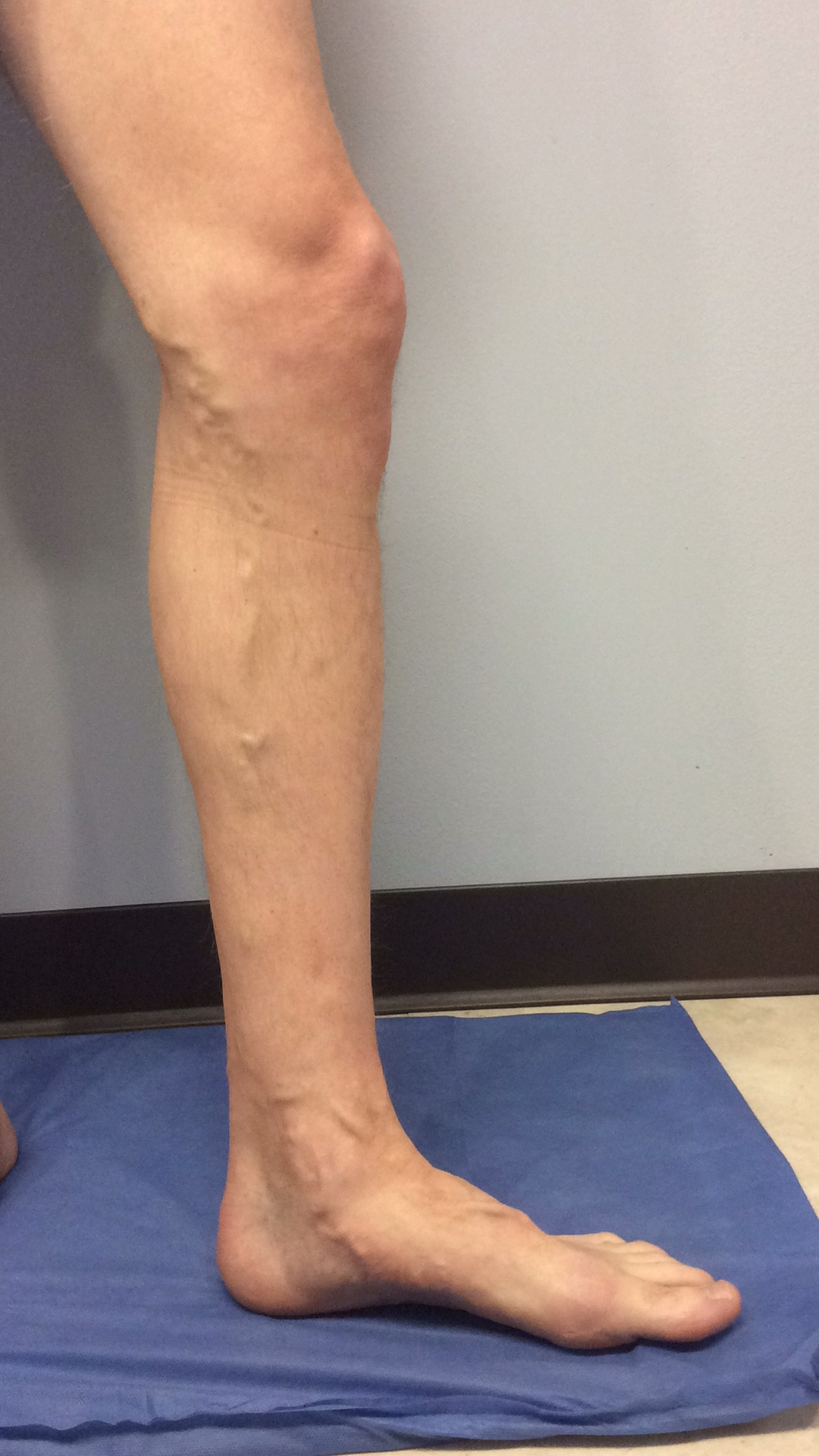 Before vein treatment image for varicose veins