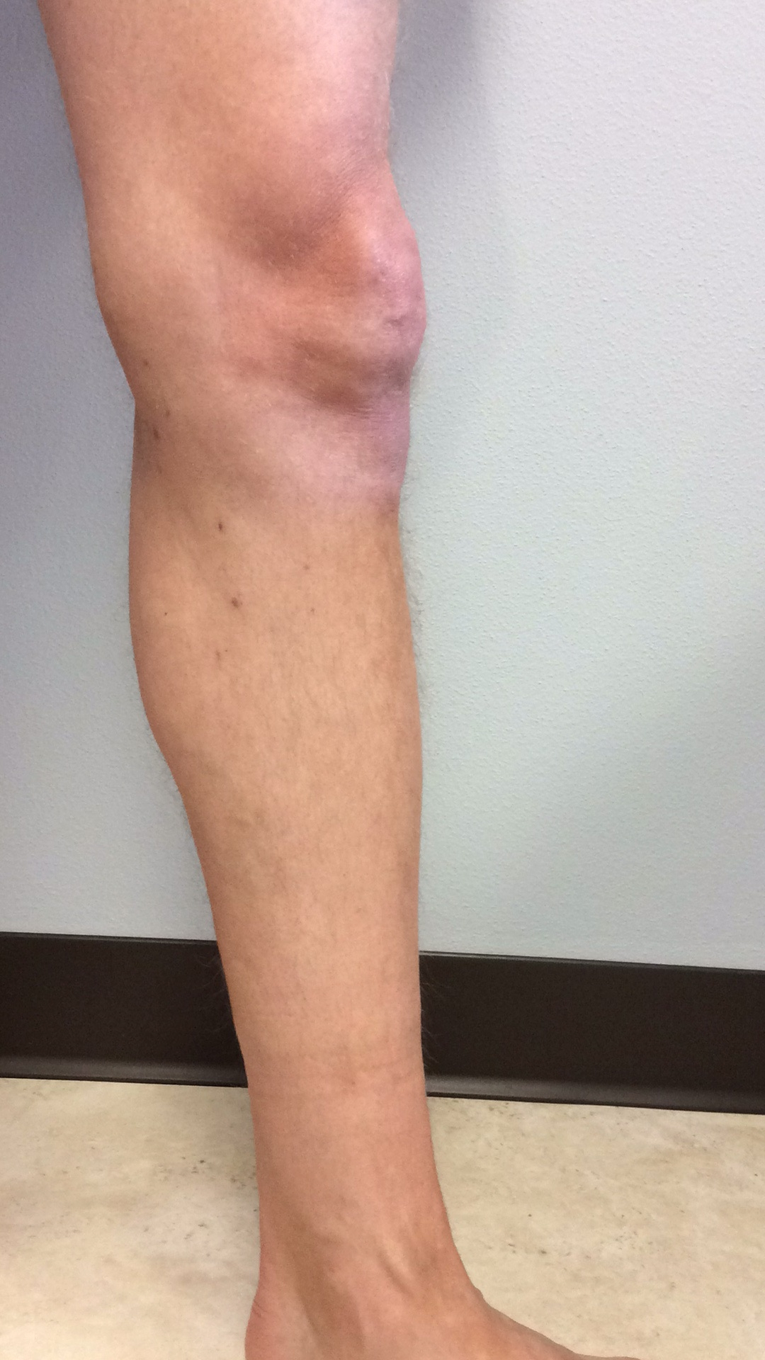 After vein treatment image for varicose veins