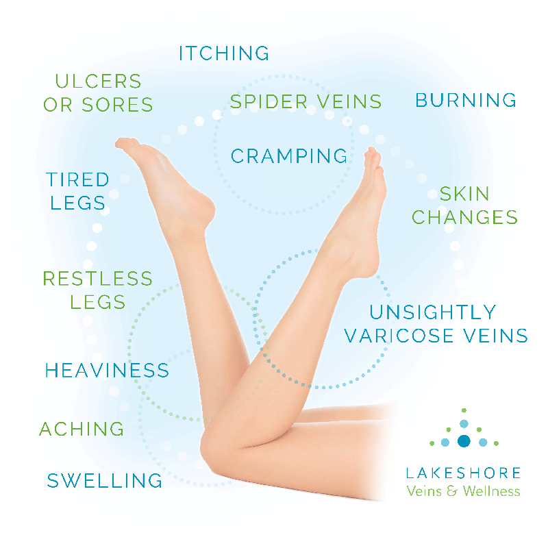 Graphic listing the symptoms of varicose veins: swelling, restless legs, aching, spider veins and more