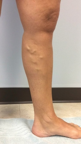 Another image in a series of before and after pictures for varicose veins treatment