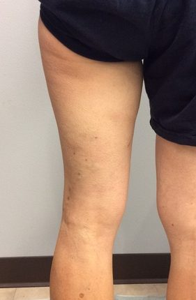 After treatment pictures of legs for varicose veins surgery