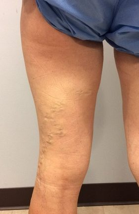 Before treatment pictures of legs for varicose veins surgery