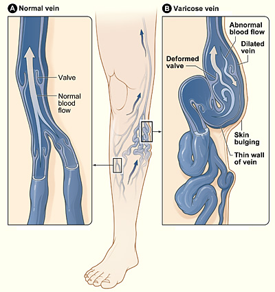 what_are_Varicose_veins