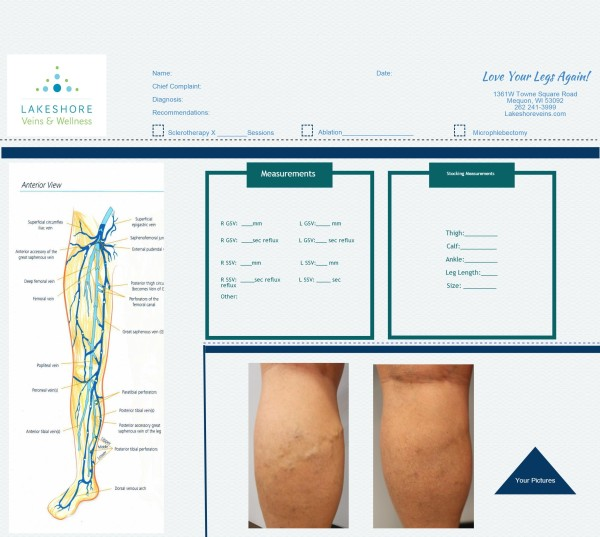 Records for spider and varicose veins treatment plan at Lakeshore Veins in Mequon, WI