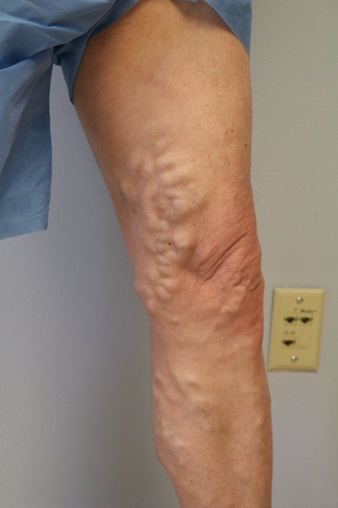 A leg before post radiofrequency ablation, a laser vein treatment near me