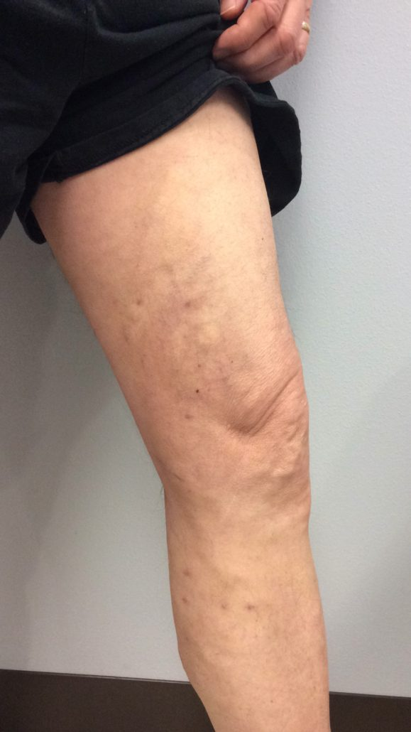 A leg 1 month post radiofrequency ablation, a laser vein treatment