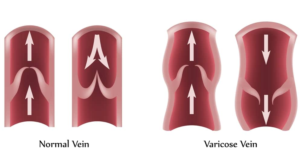 Schematic of a normal vein and a varicose vein before treatment