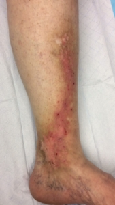 Image of the ankle with venous eczema or stasis dematitis