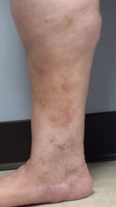 Picture of ankle in a woman with varicose exma
