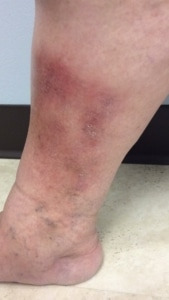 Picture of ankle in a woman with varicose eczema prior to vein treatment