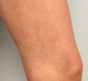 woman with spider veins on her inner thigh