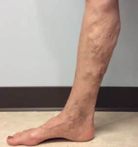 Woman with lower leg varicose veins and venous insufficiency skin changes