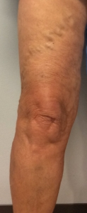 Picture of ropy varicose vein in the thigh in a female patient