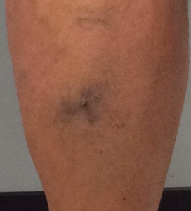 Woman with bleeding spider vein on her calf