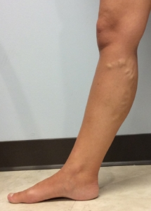 Picture of the lower leg of a young fit woman with varicose veins