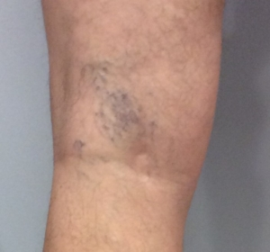 young man with spider veins behind his knee