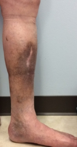 Venous Insufficiency Pictures & Images: A Visual Guide