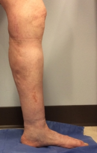 Picture of the lower leg of a patient with venous insufficiency and swelling