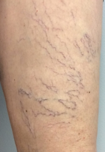 young woman with spider veins on front of thigh and early sign of venous insufficiency