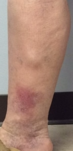 Image lower leg showing bulging vein and associated venous insufficiency skin changes