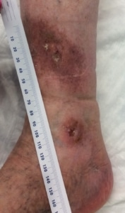 picture of an ankle with 2 venous insufficiency ulcers
