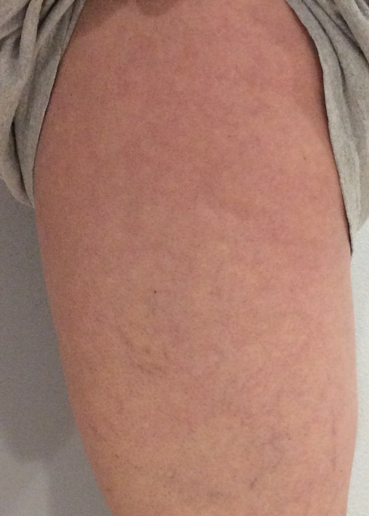 After spider vein treatment picture of left upper leg