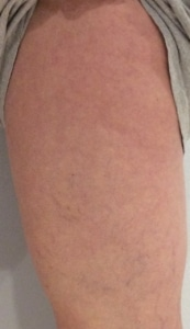 Upper leg after spider vein treatment