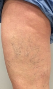 Spider veins on the left upper leg of a woman before sclerotherapy