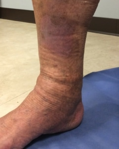 picture of the lower leg showing red and brown skin discoloration from venous stasis skin changes
