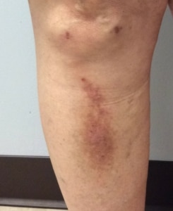Picture of the right leg with a itchy red sore that wont heal taken at a vein clinic near me