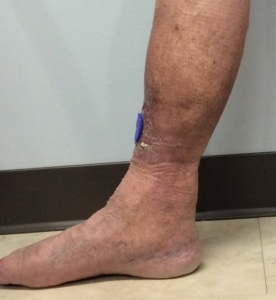Image of the lower leg in a patient with extensive venous stasis skin changes, skin discoloration and lipodermatosclerosis
