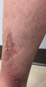 Picture with open sores on legs in a patient at a Milwaukee area vein clinic