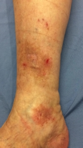 Image of the lower leg with red sores prior to venous insufficiency treatment at a Milwaukee area vein clinic
