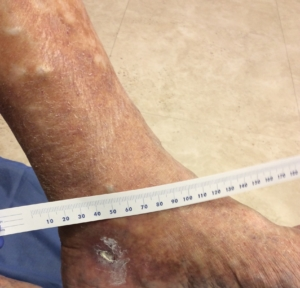 Small non healing ulcer below the left ankle in patient with varicose veins in lower leg