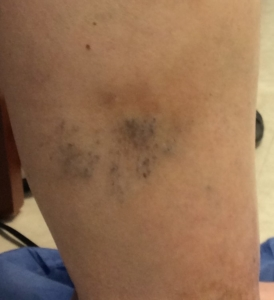 picture of the outside of the lower leg of a patient with painful spider veins obtained from a Lakeshore Veins patient - Milwaukee area vein clinic