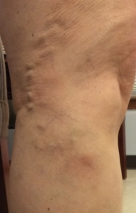 Picture of the right outside knee in a person with leg vein pain taken at a Mequon, Wisconsin vein clinic