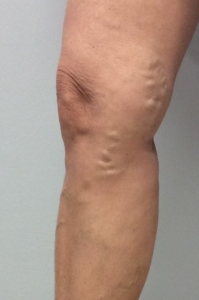 picture of the right knee from a patient at a Mequon, Vein Clinic with painful varicose veins