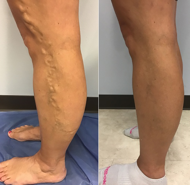 Leg images before and after laser vein ablation